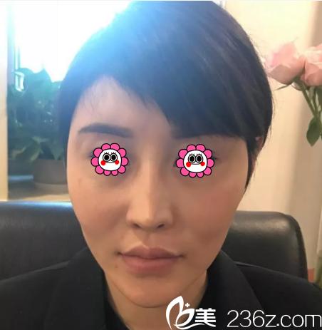 在北京玲珑梵宫做面部脂肪填充鼻修复前样子