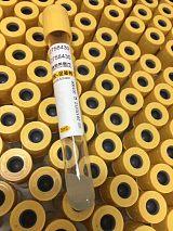 廣東生產廠家全科耗材一次性使用真空采血管分離膠-促凝劑管質量好進口膠;