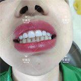 牙美拉牙齒矯正_美容院牙齒美白加盟_牙美拉