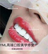 牙美拉美牙招商_美容院牙齒美白加盟_牙美拉
