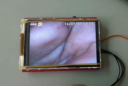 厂家直销耳鼻喉用拍照录像液晶视频存储板卡方案
